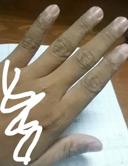 Da tay bị bong tróc có nguy hiểm không?