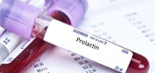 Nồng độ prolactin tăng có gây vô sinh?
