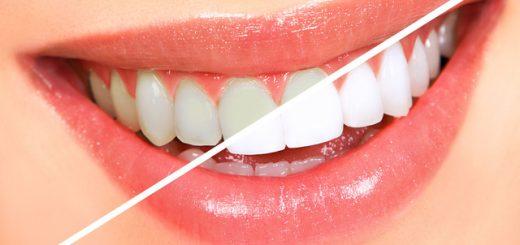 Tẩy trắng răng có gây mất men răng