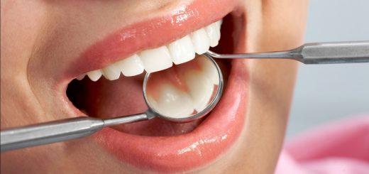 Cách điều trị nướu răng xuất hiện mụn mủ