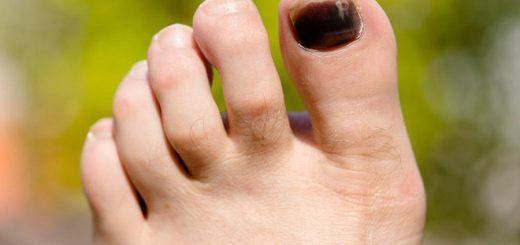 Móng chân bị bầm tím có tự khỏi không?