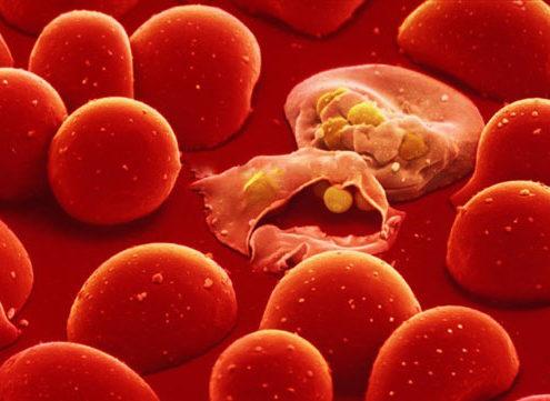 Cấy tế bào gốc điều trị bệnh tan máu