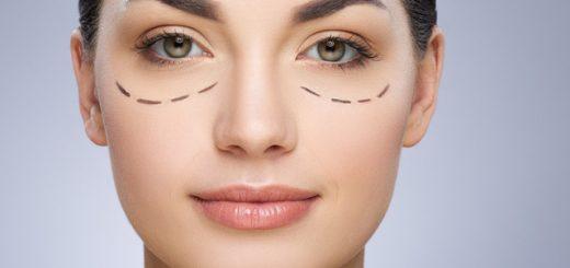 Cách sửa mí mắt bị cắt hỏng