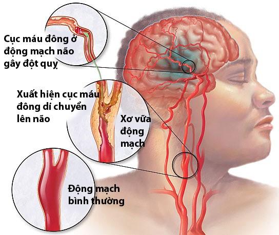 Xuất hiện máu đông trong não bệnh nhân tai biến