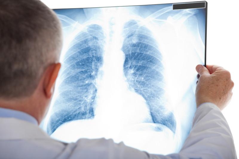 Bị bệnh lao phổi âm tính có nguy hiểm không?