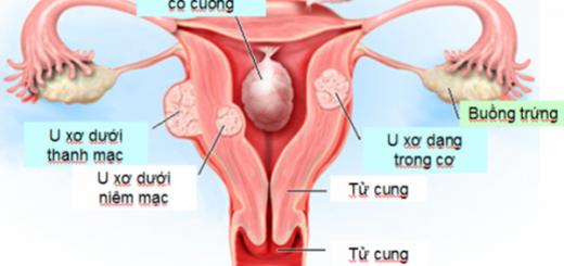Điều trị bị đa nhân xơ tử cung to