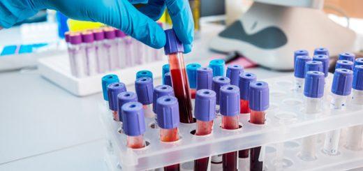 Thử máu phát hiện sử dụng ma túy đá