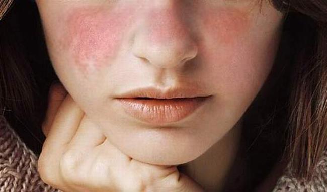 Bị rát đỏ hai bên má - điều trị như thế nào?