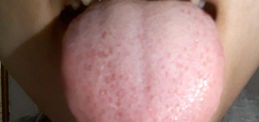 Xuất hiện nhiều gai đỏ trên lưỡi