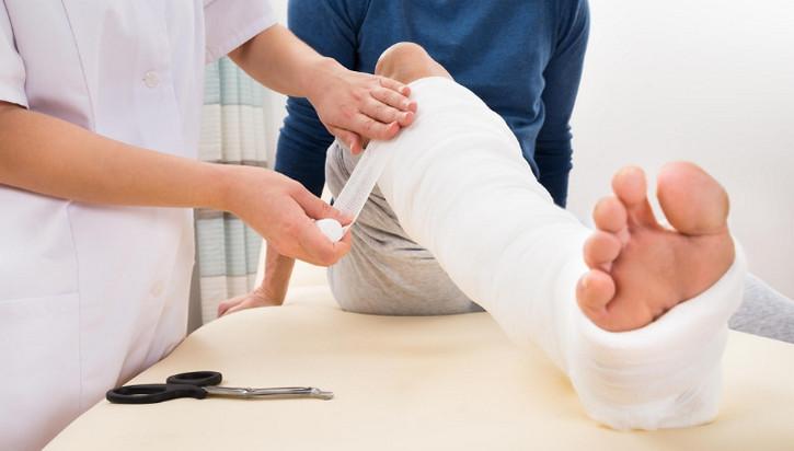 Bị gãy kín xương ống 1/3, thì phẫu thuật hay bó bột sẽ tốt hơn?