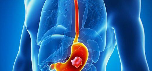 Phẫu thuật cắt bỏ ung thư dạ dày ở đâu an toàn?
