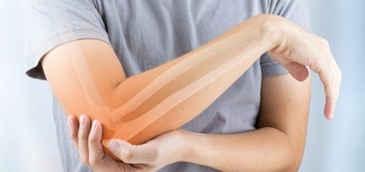 Nên phẫu thuật khuỷu tay bị cong ở đâu an toàn?