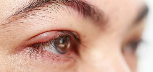 Cách xử lý mắt bị cộm do bụi bay vào nhanh chóng