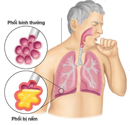 Điều trị bệnh u nấm phổi hết bao nhiêu tiền?