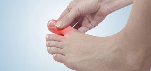 Chữa trị bệnh ngón chân sưng to và có mủ dứt điểm