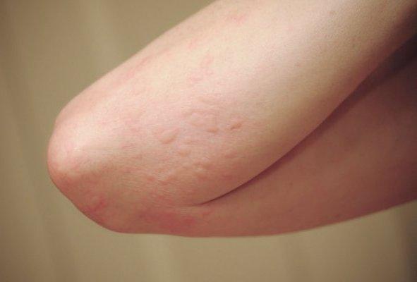 Muỗi cắn khiến da bị mẩn ngứa và lan rộng
