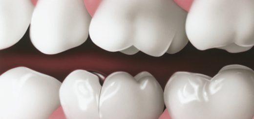 Bị nứt răng phải làm sao?