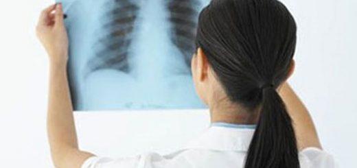 Dấu hiệu nhận biết ung thư vú di căn