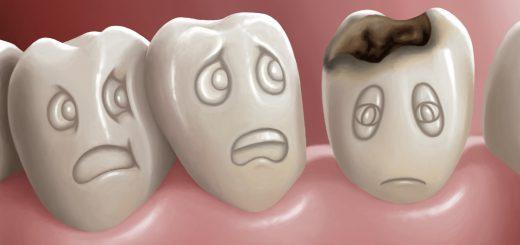 Răng bị vỡ thì nên nhổ hay trám lại, có nguy hiểm gì không?