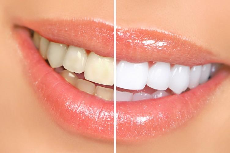 Khắc phục răng bị xám đục