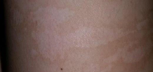 Cách xóa sẹo do bị bỏng nhanh chóng