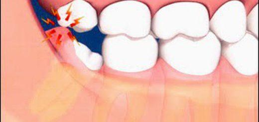 Nướu răng bị sưng có nguy hiểm không?