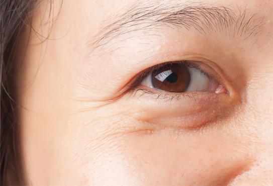 Mắt bị liệt 1 nửa, không mở được, đi khám ở đâu?