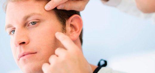 Điều trị nang tuyến bã bị xơ hóa hiệu quả