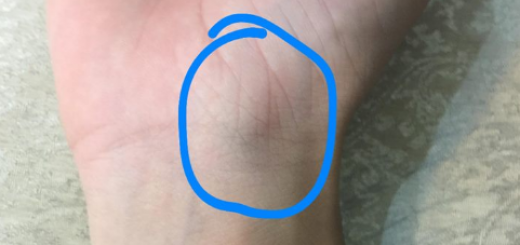 Xuất hiện cục u cứng ở cổ tay có nguy hiểm không?