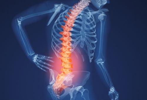 Điều trị viêm cột sống dính khớp như thế nào?