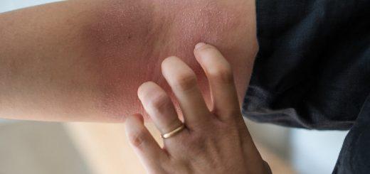 Điều trị dứt điểm bệnh viêm da cơ địa luôn lâu năm