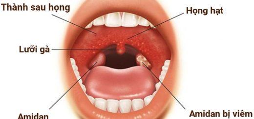 Bị đờm ở họng, muốn ho là dấu hiệu bệnh gì?