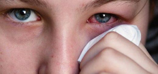Phát hiện mắt sưng đỏ, nhiều ghèn là dấu hiệu bệnh gì?