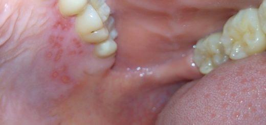 Cách điều trị viêm loét miệng nhanh chóng