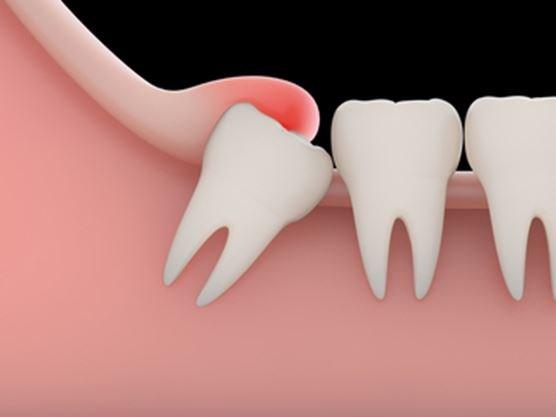 Lợi bị sưng chỗ răng khôn và cách điều trị