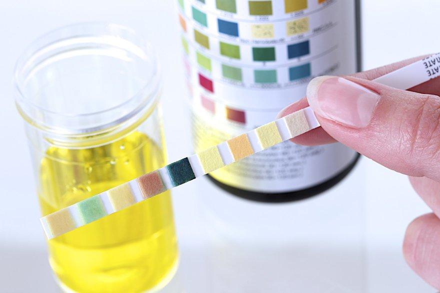 Dấu hiệu nhận biết mắc bệnh thận qua nước tiểu