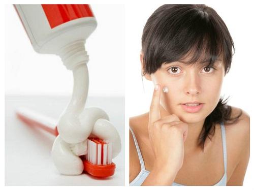 Cách trị mụn tận gốc với kem đánh răng