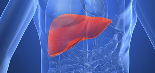 Phát hiện trên gan phải có vài nốt vôi hóa nốt to nhất 4mm và đặc biệt là nốt giảm âm 17mm x10mm