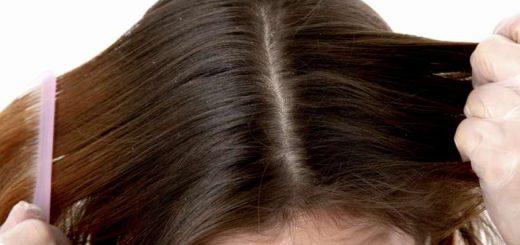 Dấu hiệu nhận biết sớm bệnh nấm da đầu, xuất hiện vảy, ngứa da đầu?