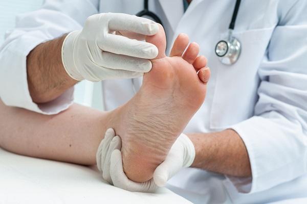 Rạn đầu xương bàn V bàn chân phải, không cần bó bột, chỉ cần uống thuốc?