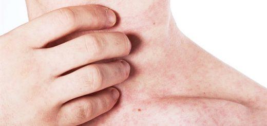 Cách điều trị tình trạng da nổi mẩn ửng đỏ