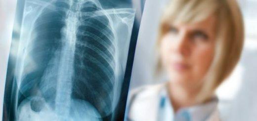 Bị u lao ở phổi có phải mổ không?