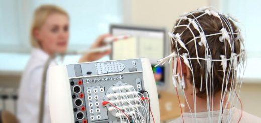 Điện não đồ sẽ đo trong bao lâu, chi phí hết bao nhiêu?