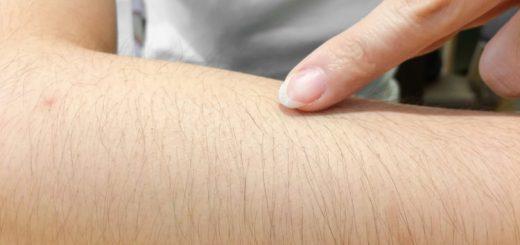 Cách chữa khỏi chứng rậm lông ở tuổi dậy thì?