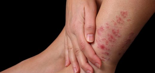 Thuốc nào điều trị bệnh vẩy nến dứt điểm?