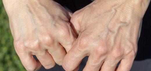 Gân tay nổi nhiều và to có bị sao không?