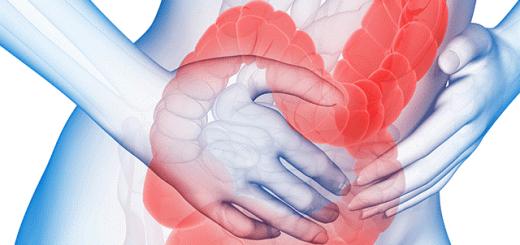 Điều trị hội chứng ruột kích thích dứt điểm?