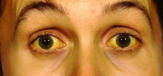 Uống thuốc chống lao bị vàng mắt, vàng da thì có bình thường không?