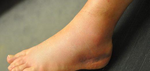 Sau khi tháo bột thấy bị sưng có nguy hiểm không?