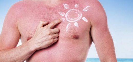 Khắc phục tình trạng da bị cháy nắng nhanh chóng
